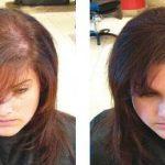 HairFor2 100 ml, Densificateur capillaire Waterproof en Spray