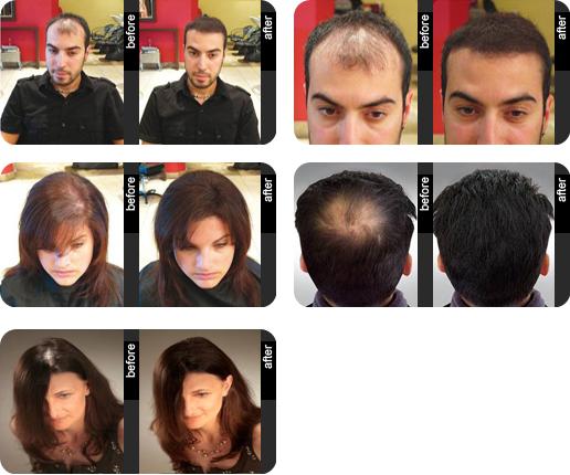Spray densifiant cheveux homme et femme