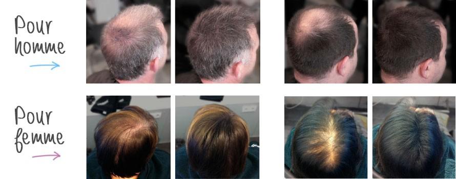 Hair Plus Flacon 30 g Poudre de cheveux 2ème Génération